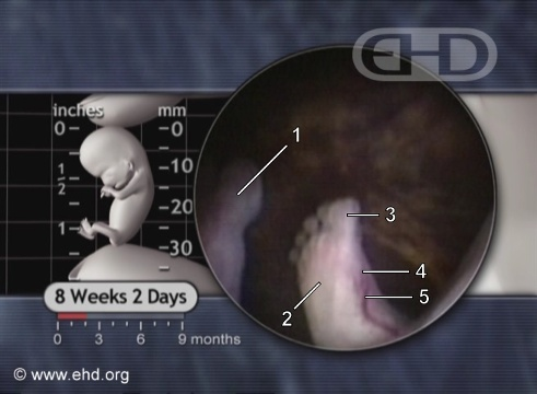 Pictures: Abortion at 8 Weeks - ClinicQuotesClinicQuotes
