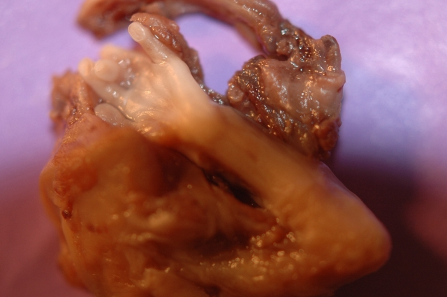 Pictures: Abortion at 18 Weeks - ClinicQuotesClinicQuotes