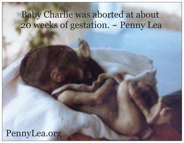 baby charlie 20 weeks