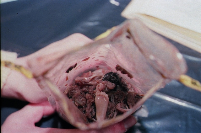 pictures of second trimester aborted babies taken from