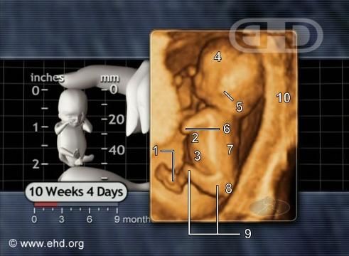 Developing life at 10 1/2 weeks