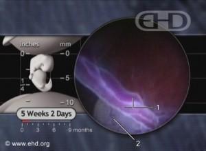5 weeks 2 days