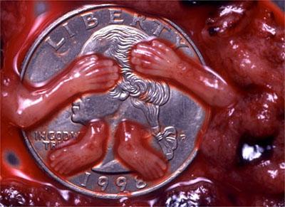 abort9w2