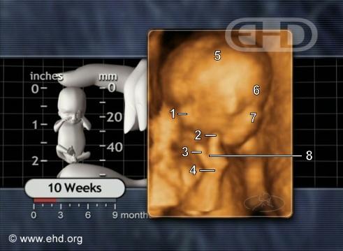 Aborto a las 10 semanas